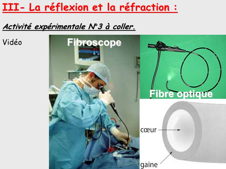 Fibroscope Fibre optique Endoscope