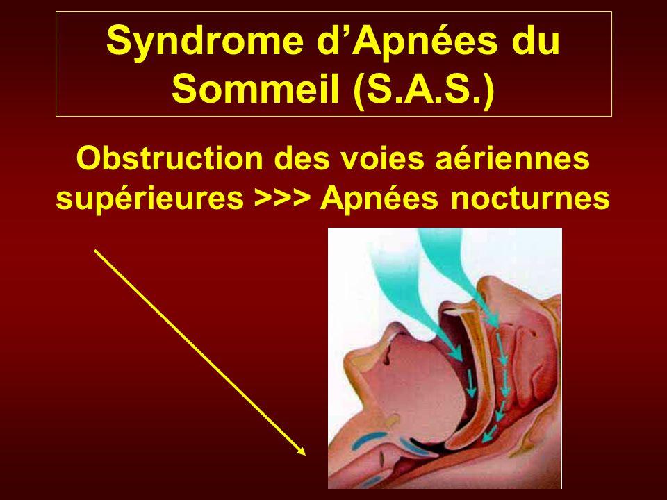 Syndrome d'Apnées du Sommeil (S.A.S.) - ppt video online télécharger