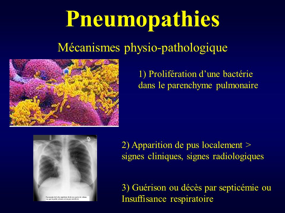 Pneumopathies Mécanismes physio-pathologique