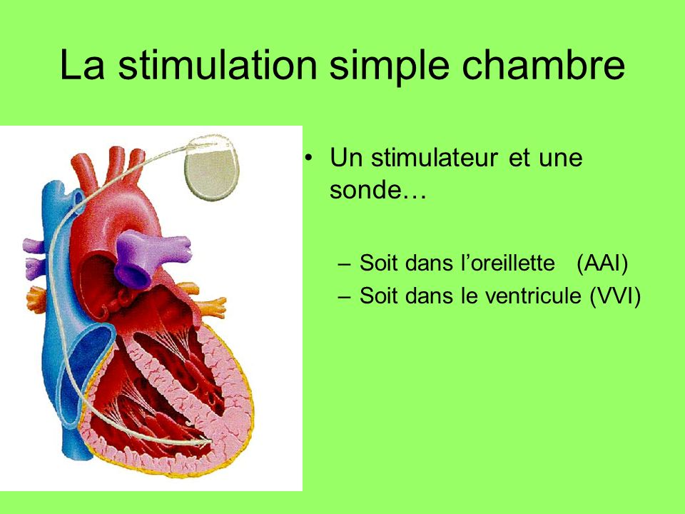 La stimulation simple chambre