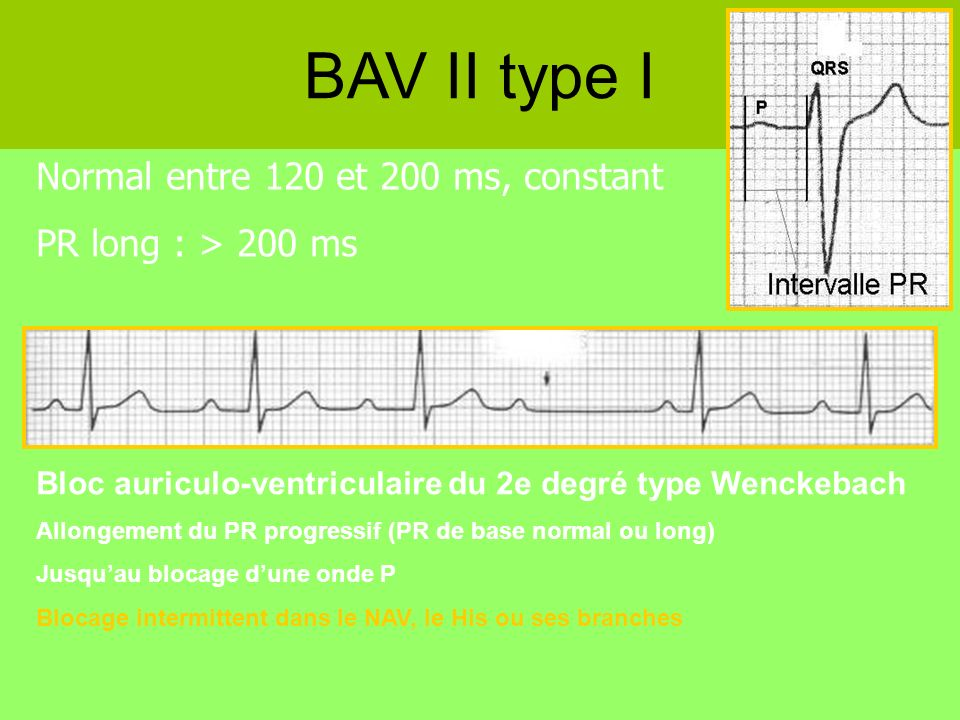 BAV II type I Normal entre 120 et 200 ms, constant
