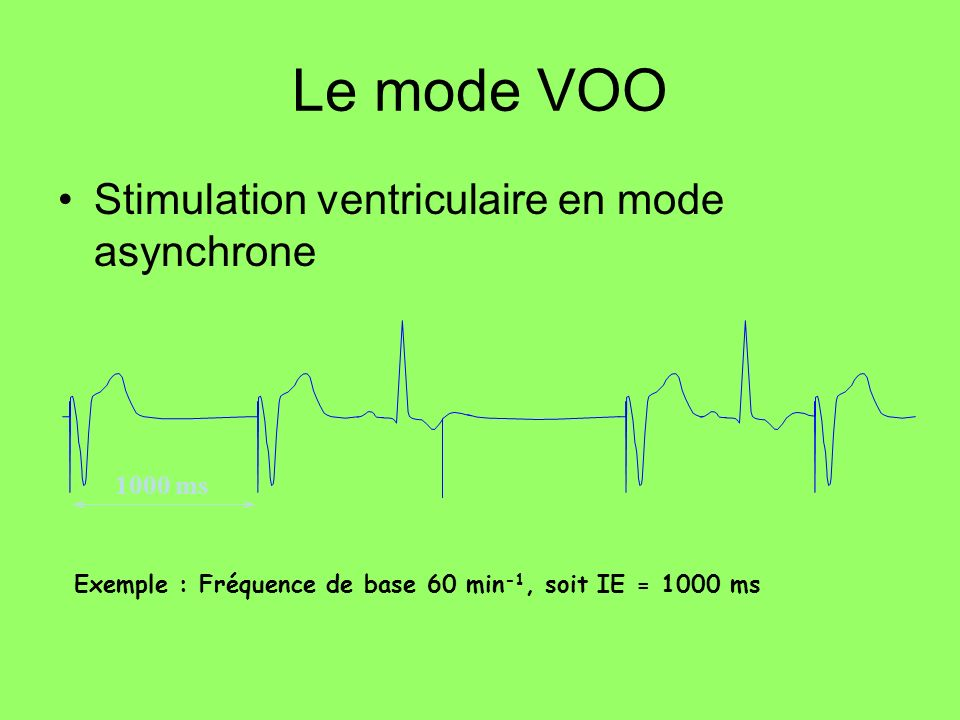 Le mode VOO Stimulation ventriculaire en mode asynchrone 1000 ms