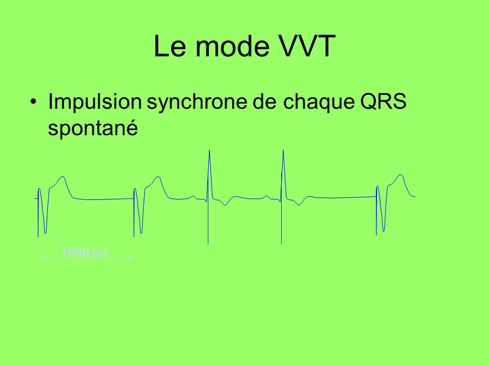 Le mode VVT Impulsion synchrone de chaque QRS spontané 1000 ms