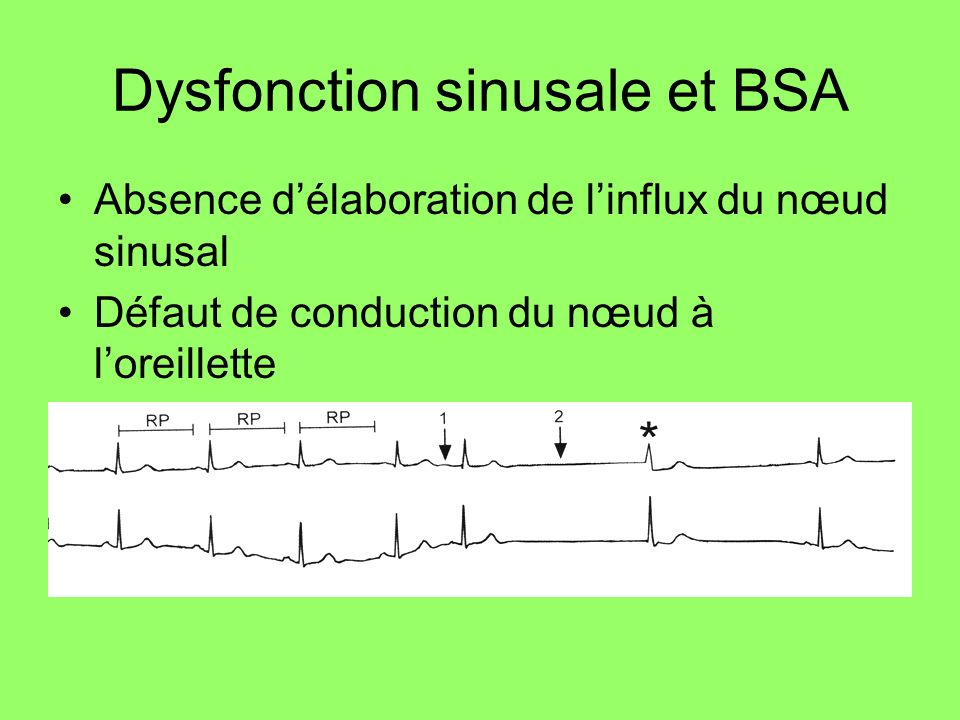 Dysfonction sinusale et BSA