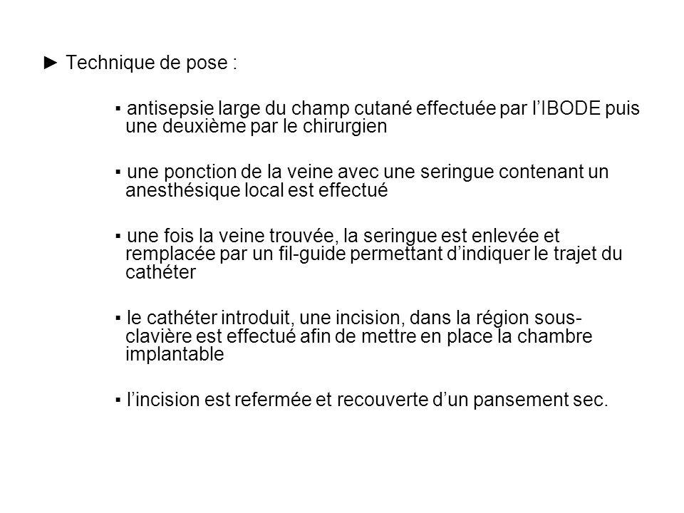 La Chambre Implantable Mercredi 23 Avril Ppt Video Online Telecharger