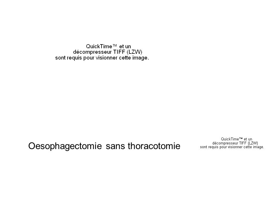 Oesophagectomie sans thoracotomie