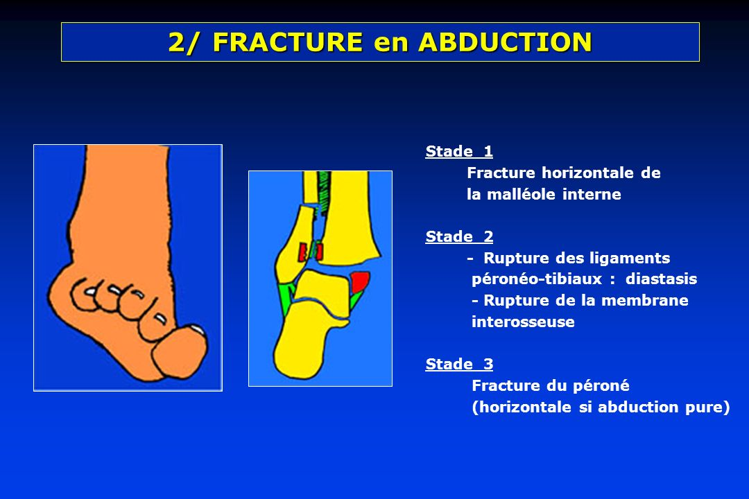2/ FRACTURE en ABDUCTION