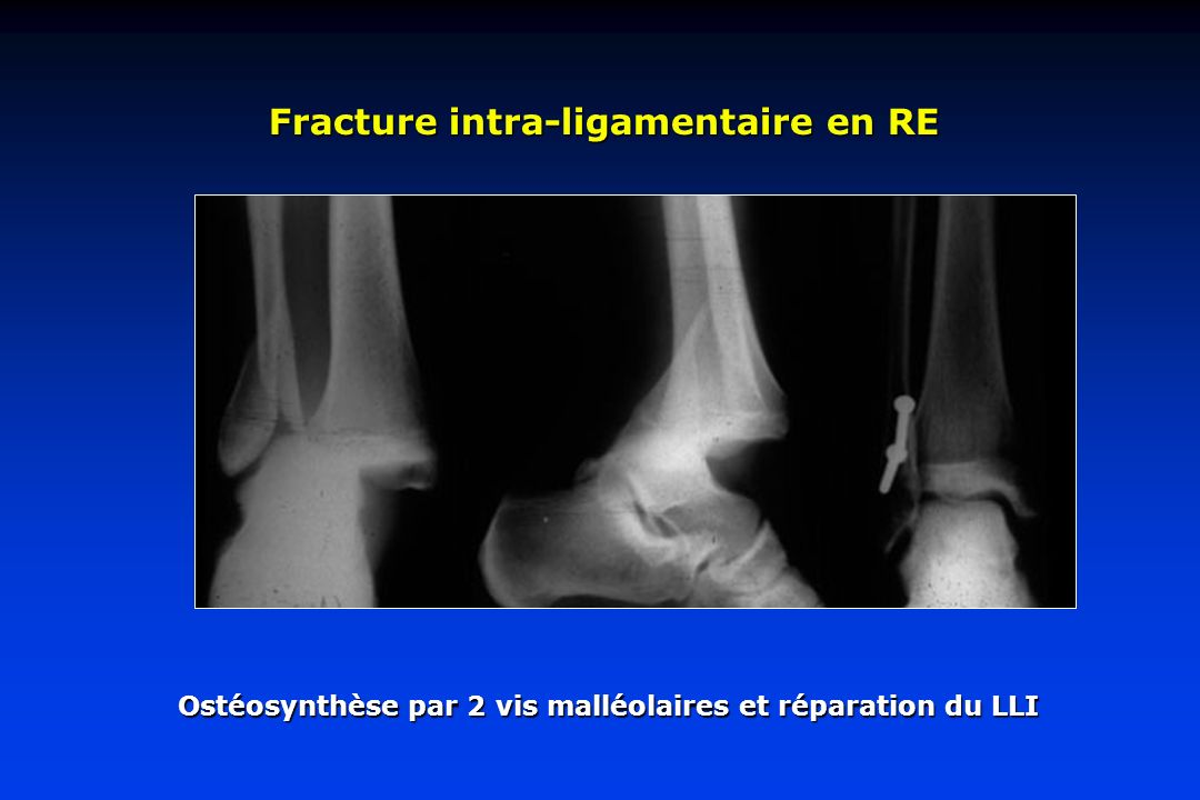 Fracture intra-ligamentaire en RE