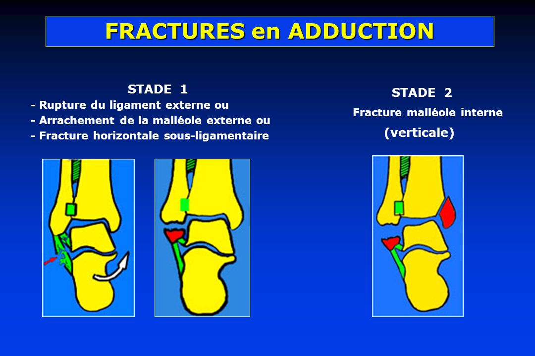 FRACTURES en ADDUCTION