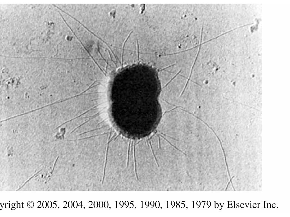 FIGURE 209-2. Nesseria gonorrhoeae with numerous pili extending from the cell surface.