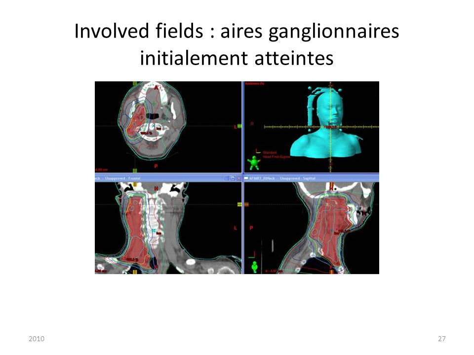 Involved fields : aires ganglionnaires initialement atteintes