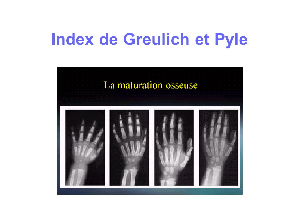 Index de Greulich et Pyle