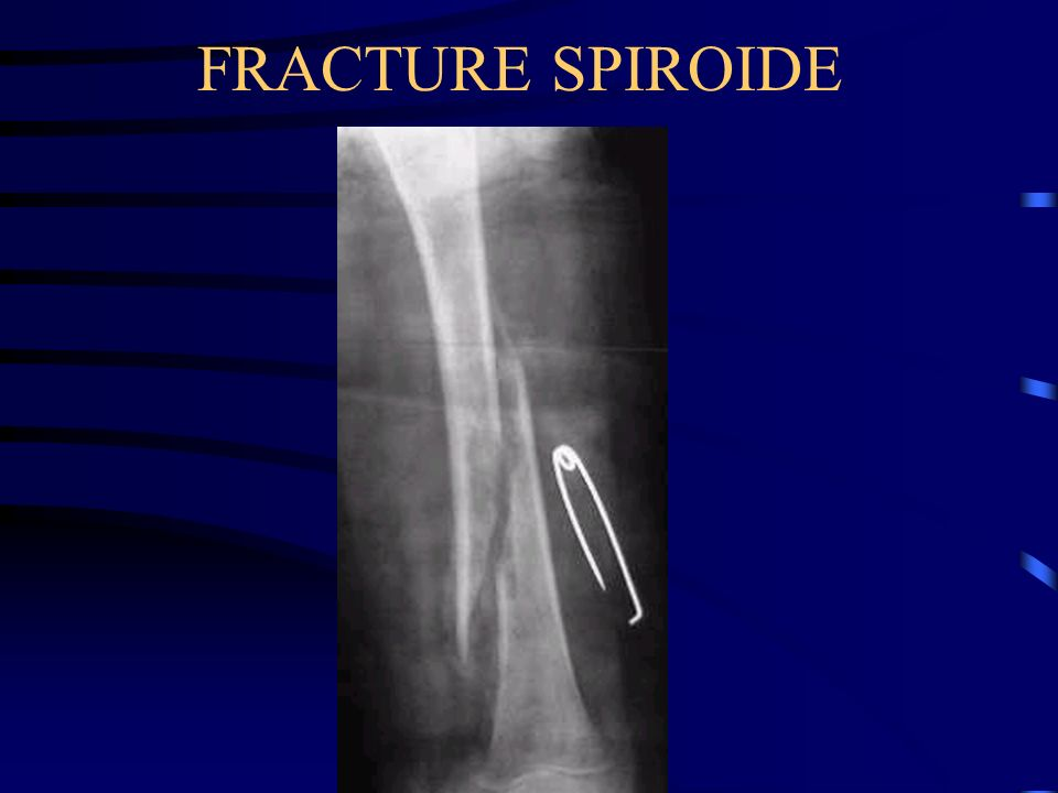 FRACTURE SPIROIDE