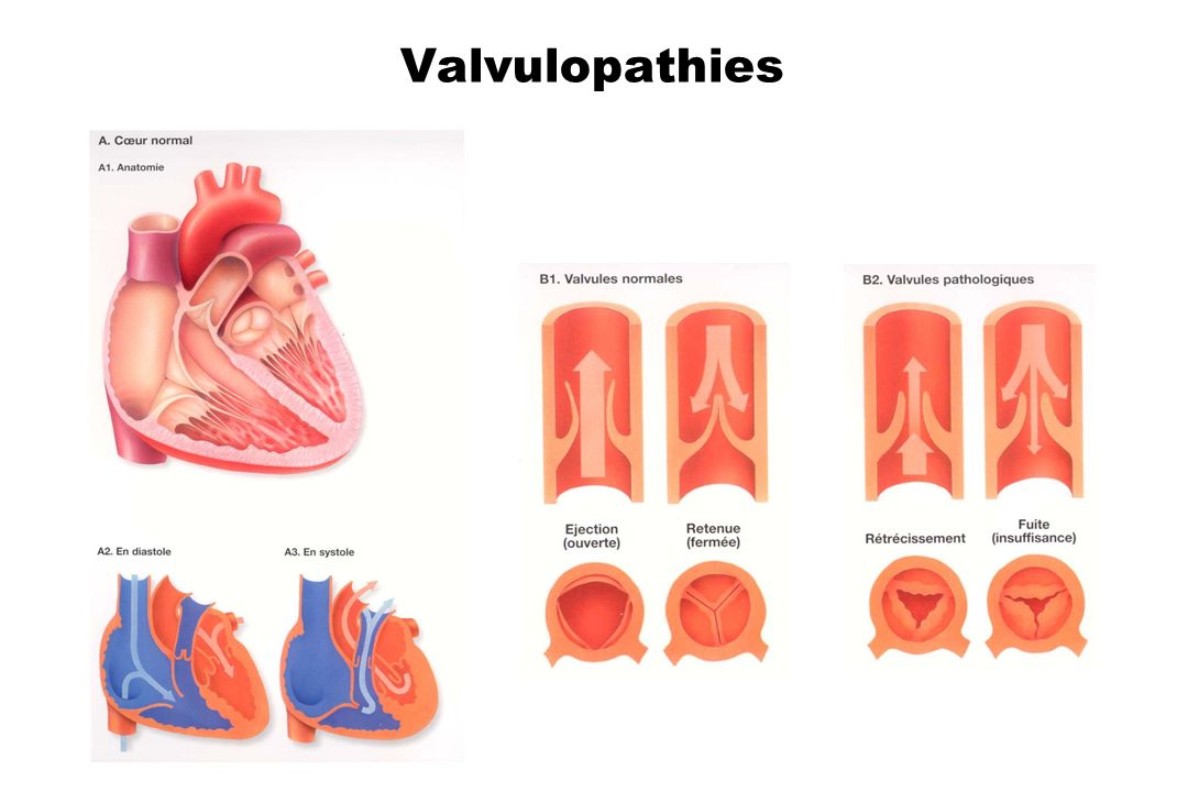 Valvulopathies