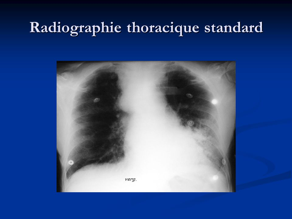 Radiographie thoracique standard