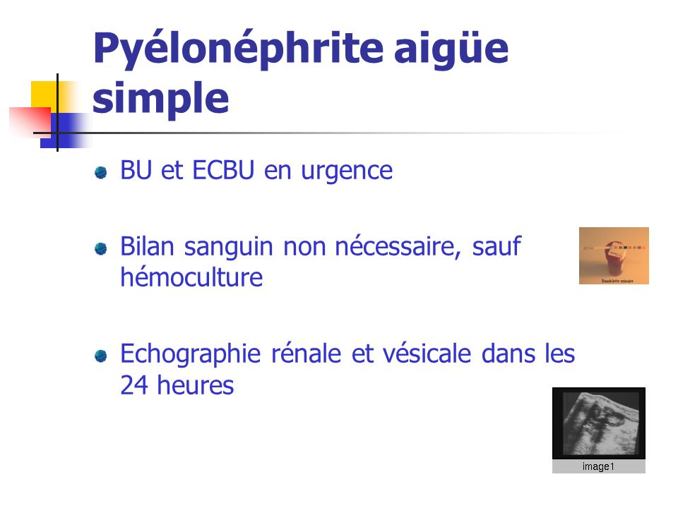 Pyélonéphrite aigüe simple