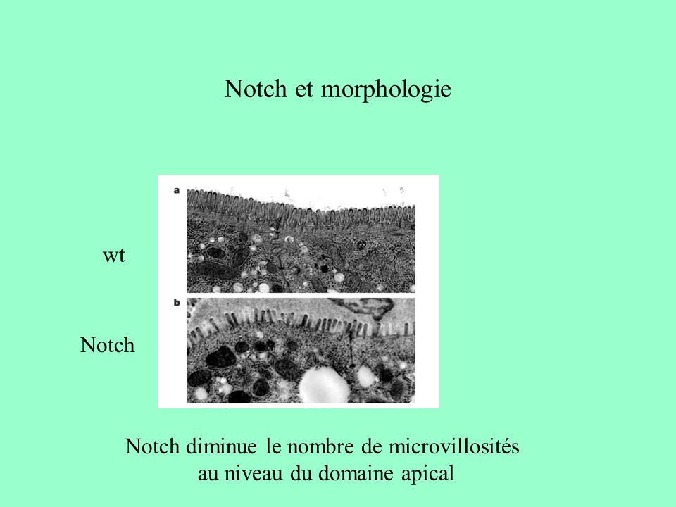 Notch et morphologie wt Notch
