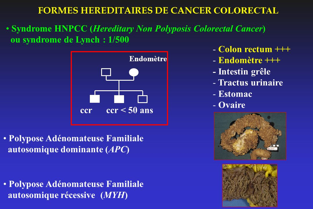 FORMES HEREDITAIRES DE CANCER COLORECTAL