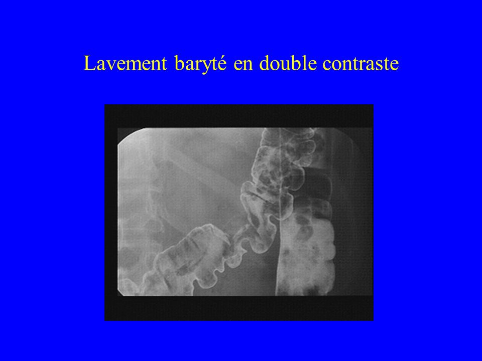 Lavement baryté en double contraste
