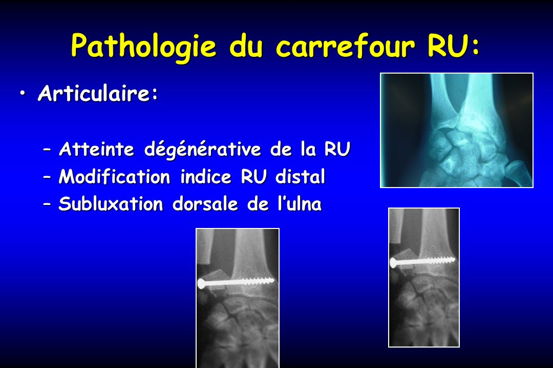 Pathologie du carrefour RU: