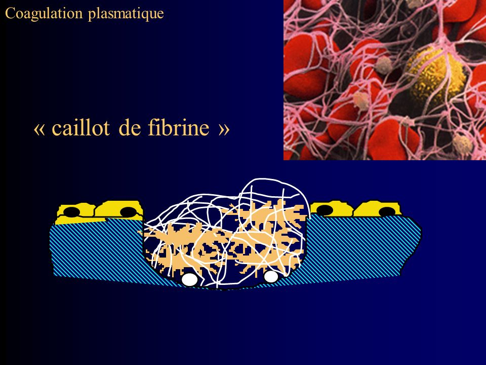 Coagulation plasmatique