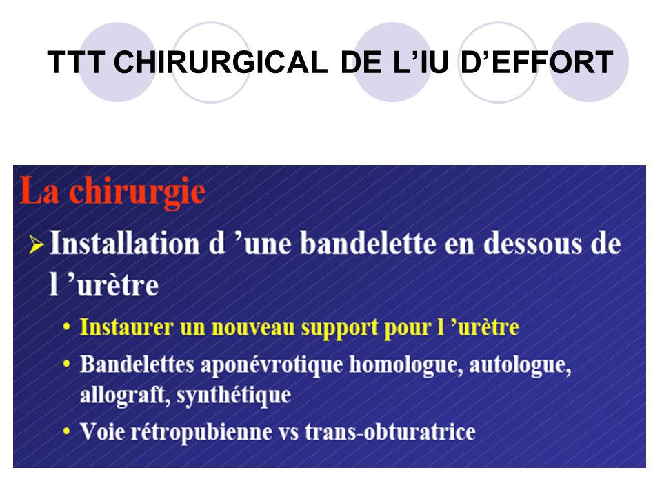 TTT CHIRURGICAL DE L'IU D'EFFORT