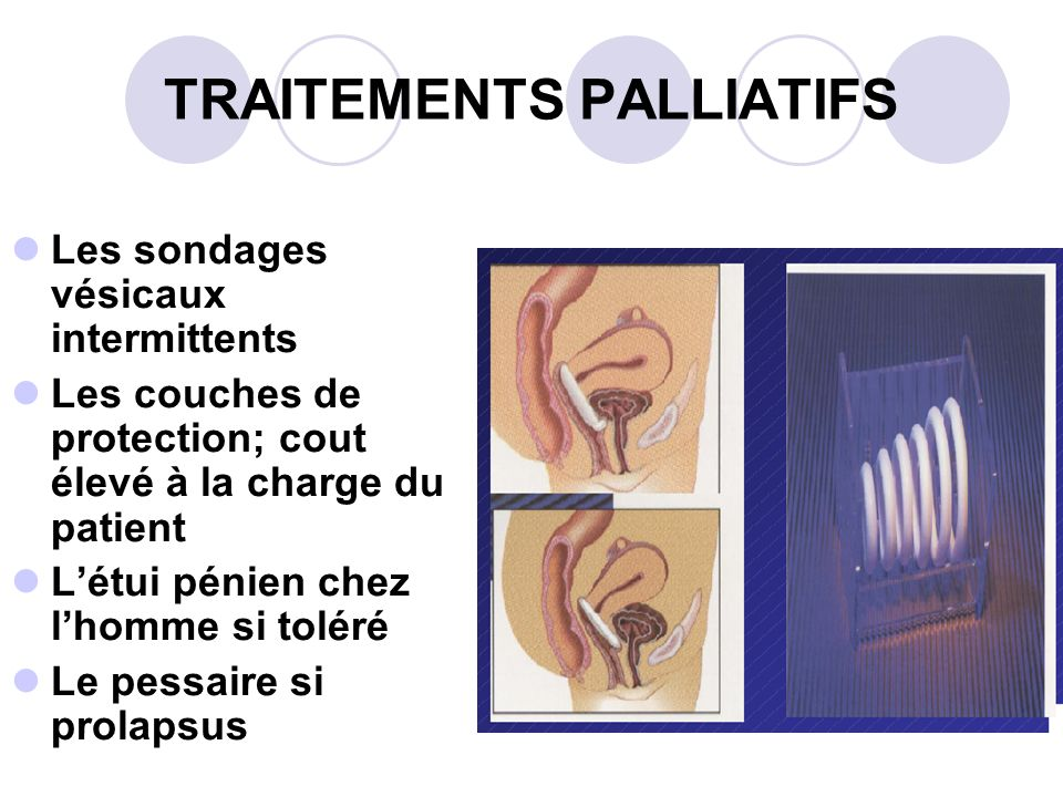 TRAITEMENTS PALLIATIFS