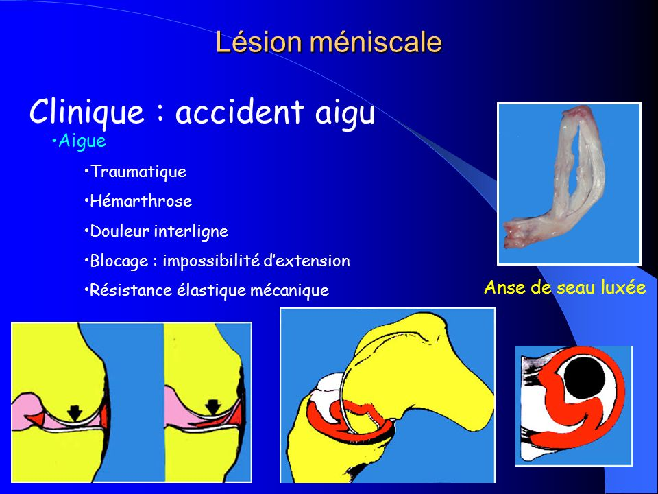 Clinique : accident aigu