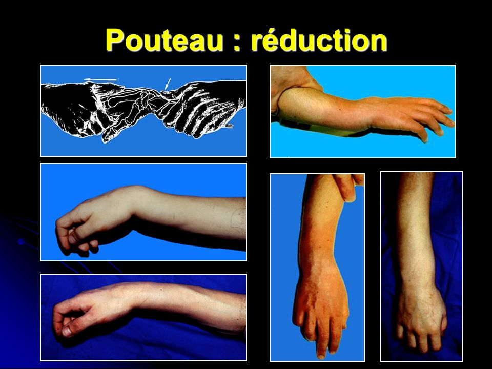 Pouteau : réduction