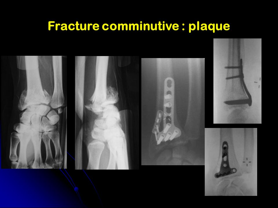 Fracture comminutive : plaque