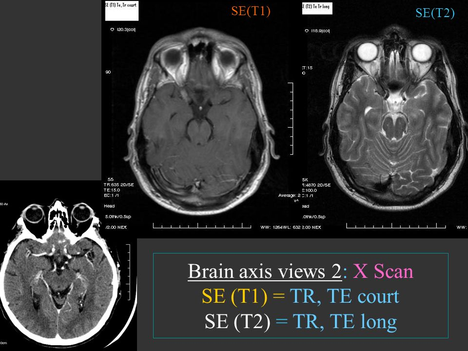 SE(T1) SE(T2) Brain axis views 2: X Scan SE (T1) = TR, TE court SE (T2) = TR, TE long
