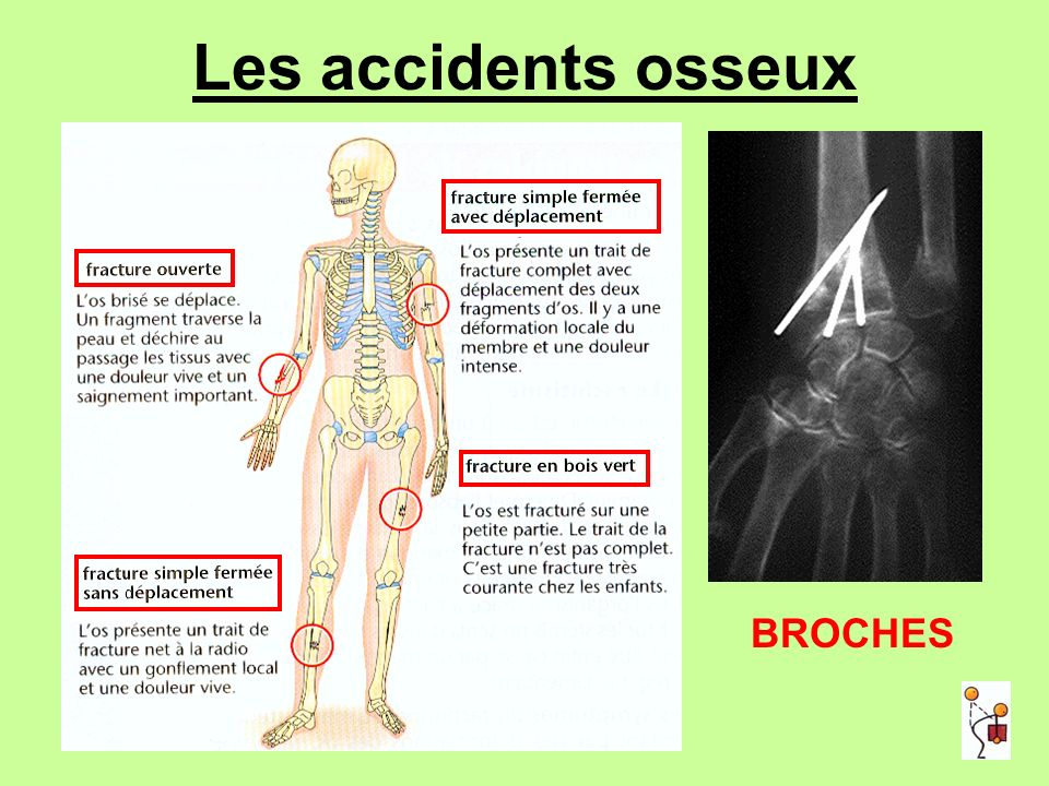 Les accidents osseux BROCHES