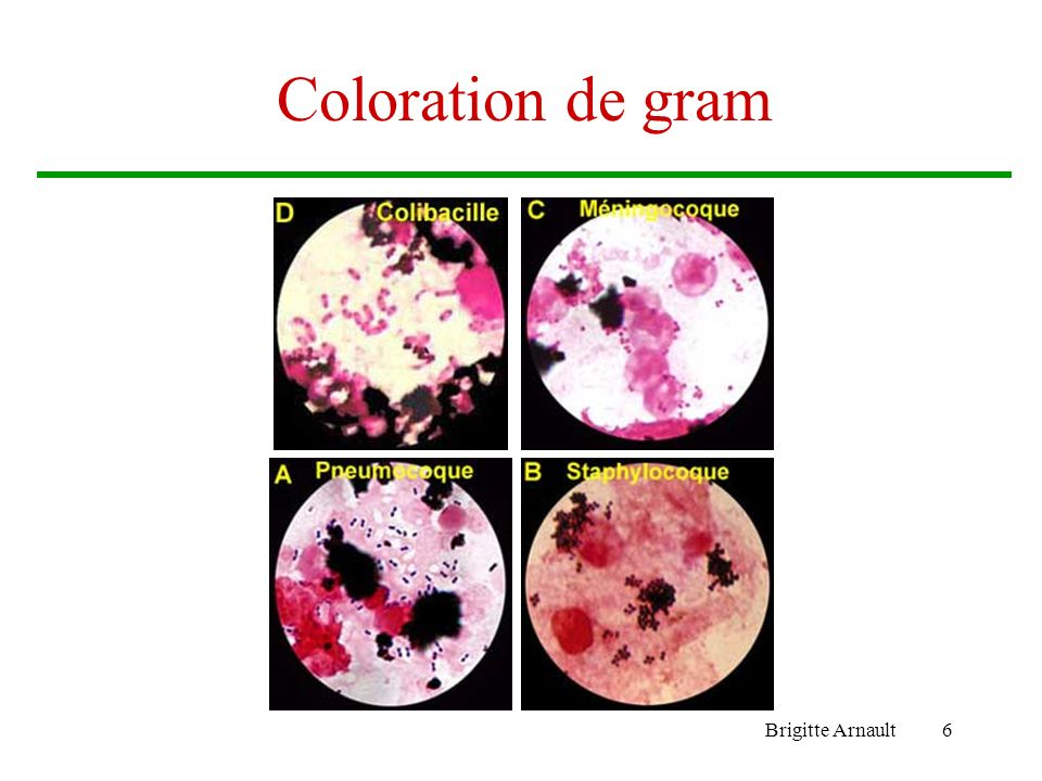 Coloration de gram Brigitte Arnault