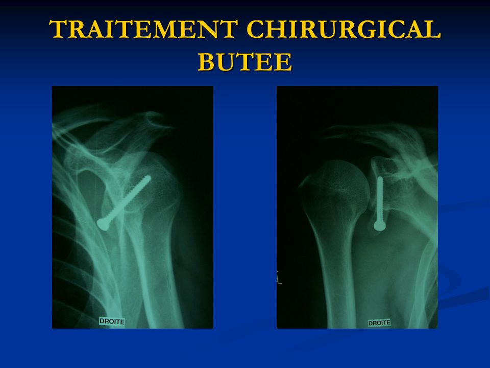 TRAITEMENT CHIRURGICAL BUTEE