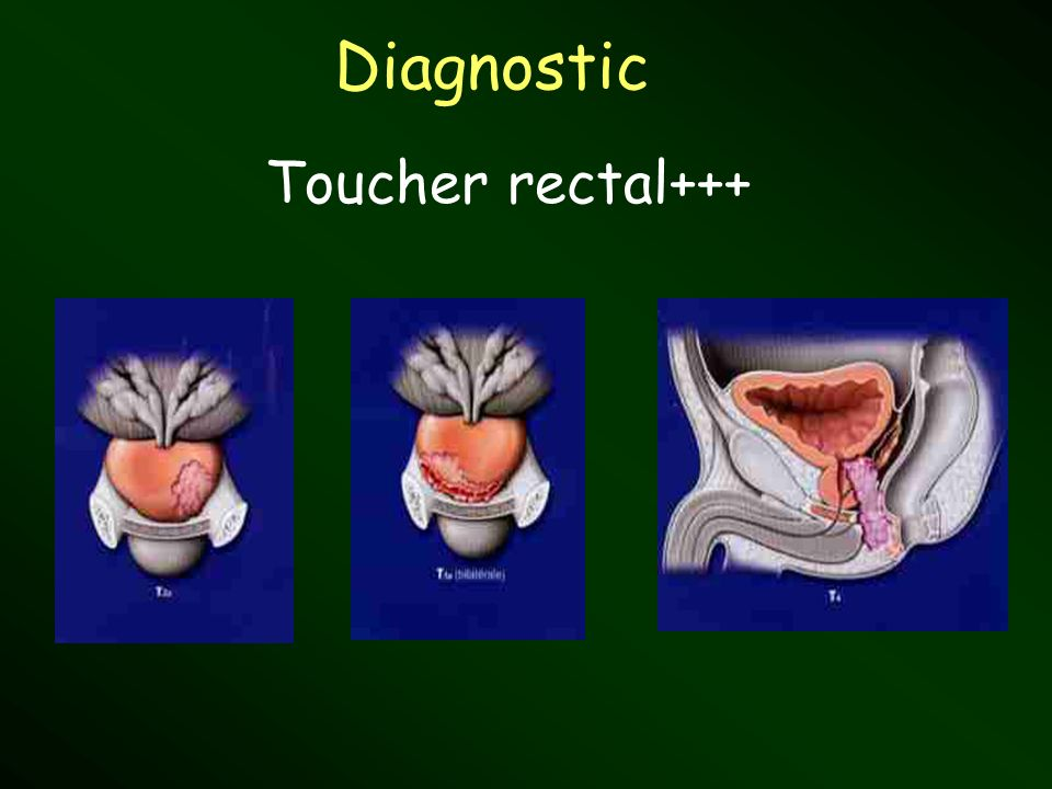 Diagnostic Toucher rectal+++