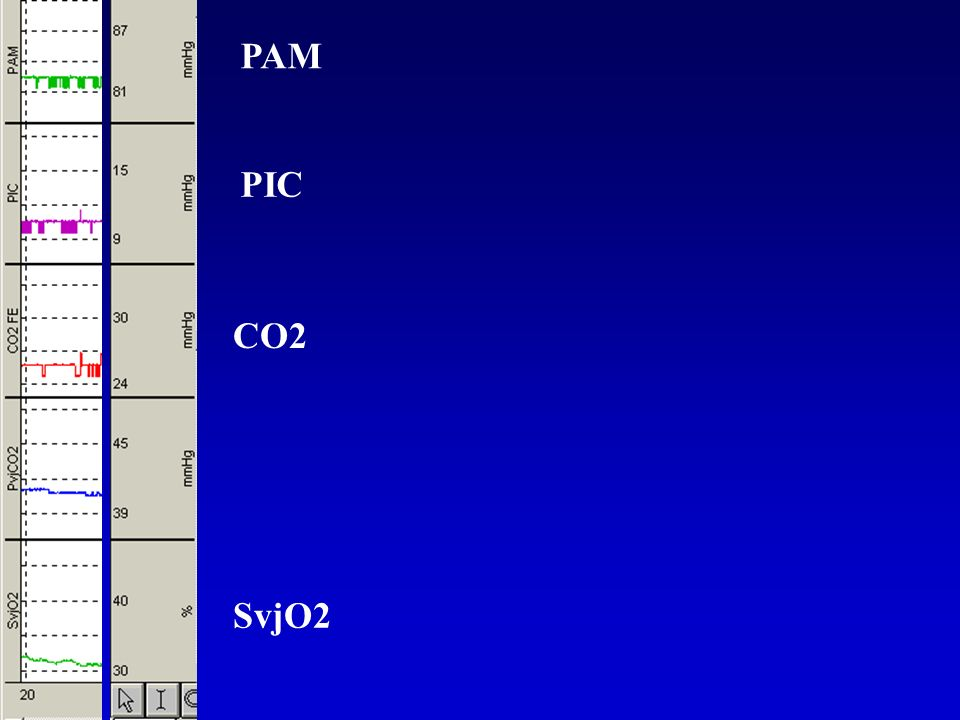 PAM PIC CO2 SvjO2