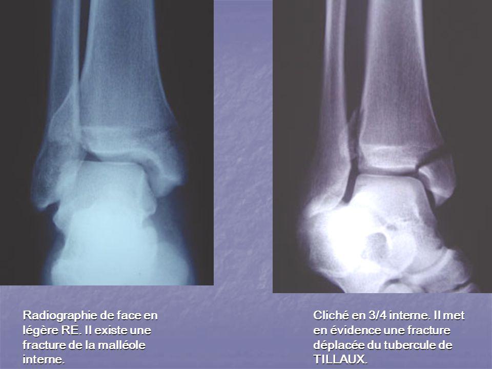 malléole interne fracture