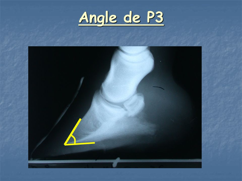 Angle de P3 Check to make sure this is correct