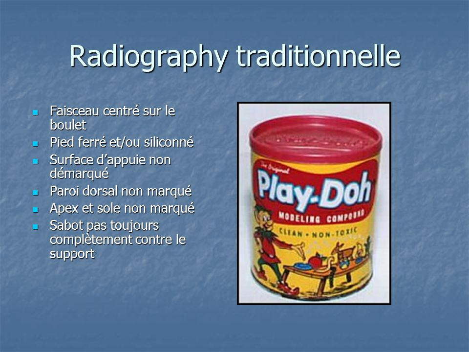 Radiography traditionnelle