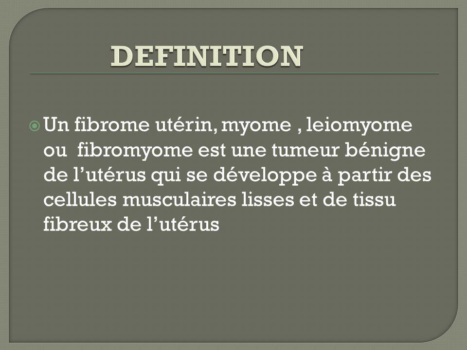 LES FIBROMES UTÉRINS. - ppt video online télécharger