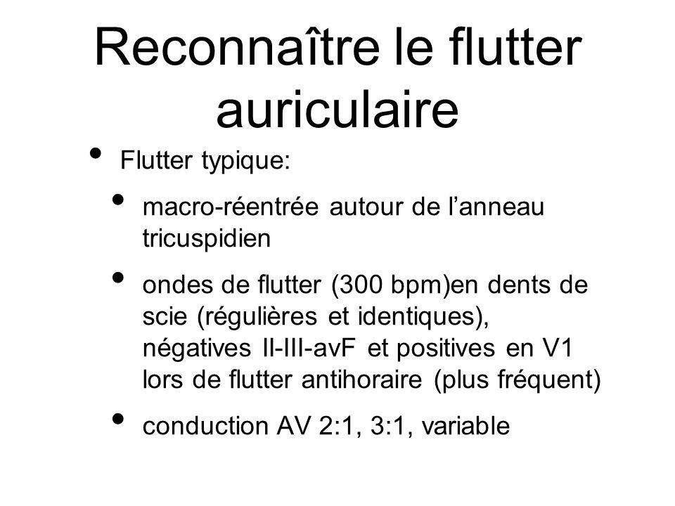 la fibrillation auriculaire l 39 essentiel pour les technologues en lectrophysiologie malak el. Black Bedroom Furniture Sets. Home Design Ideas