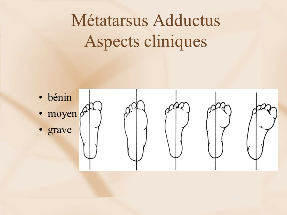 Métatarsus Adductus Aspects cliniques