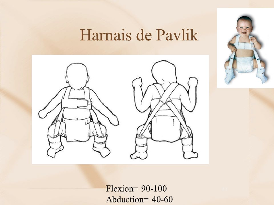 Harnais de Pavlik Flexion= Abduction= 40-60