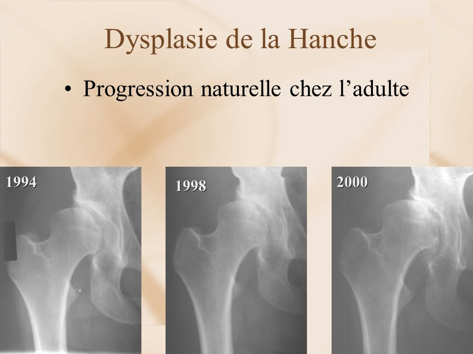 Dysplasie de la Hanche Progression naturelle chez l'adulte