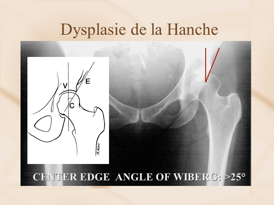 Dysplasie de la Hanche CENTER EDGE ANGLE OF WIBERG: >25°