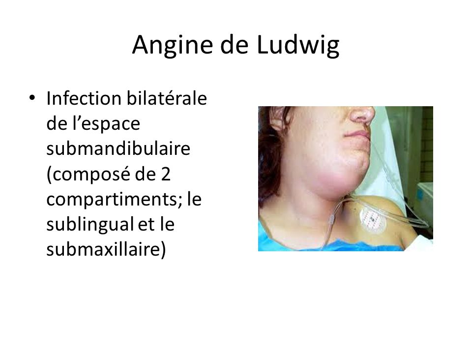 Angine de Ludwig Infection bilatérale de l'espace submandibulaire (composé de 2 compartiments; le sublingual et le submaxillaire)