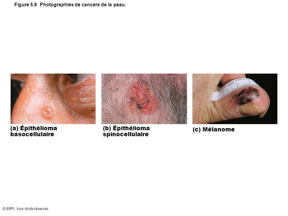 Figure 5.8 Photographies de cancers de la peau.