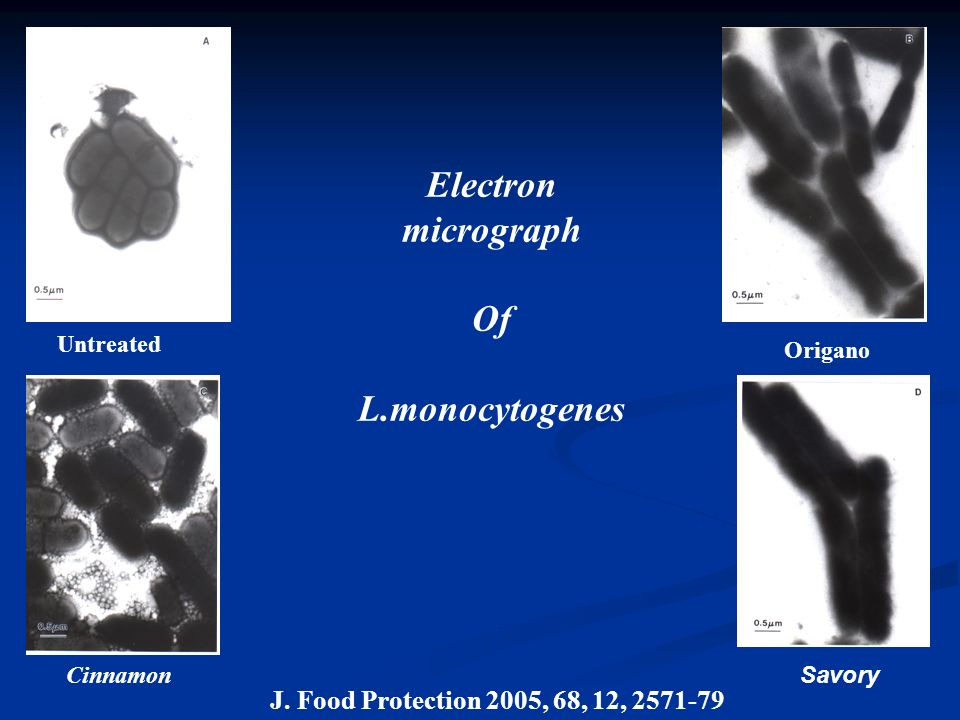 Electron micrograph Of L.monocytogenes