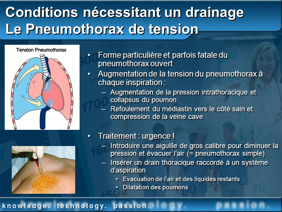 Conditions nécessitant un drainage Le Pneumothorax de tension
