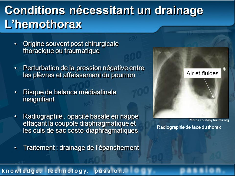 Conditions nécessitant un drainage L'hemothorax